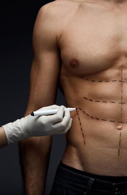 Chirurgie esthétique du torse